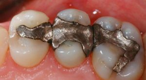 amalgam-fillings-600x330