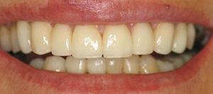 After the dental restoration